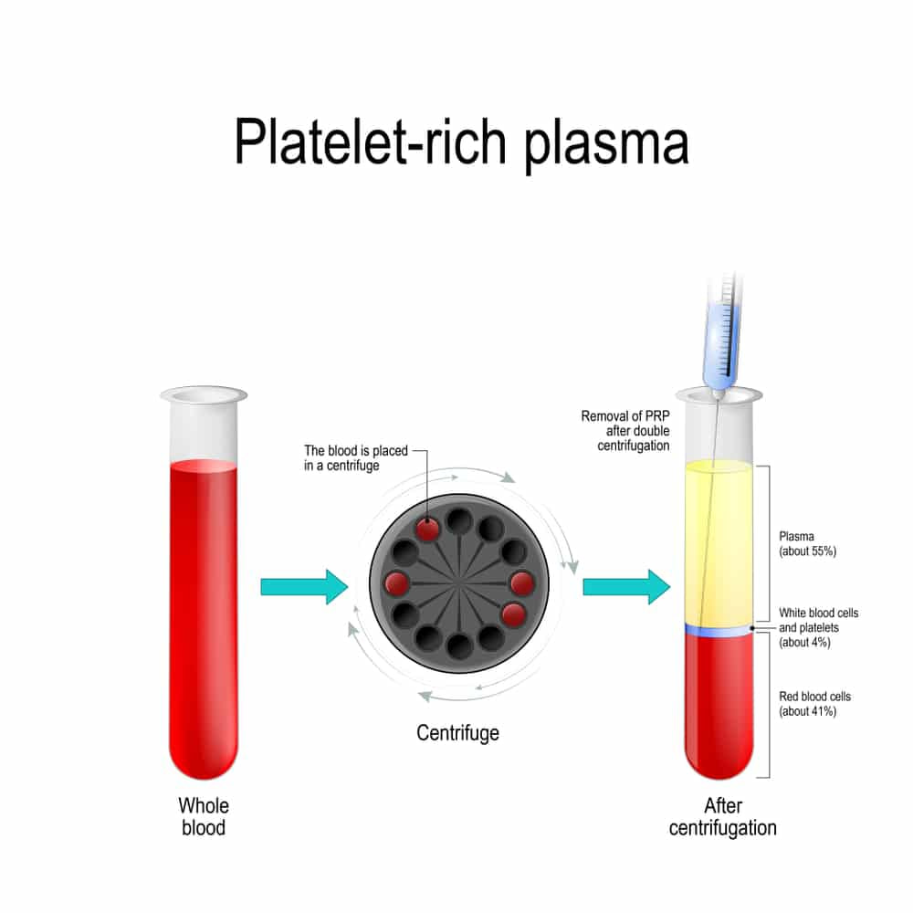 Platelet Rich Plasma 2 - Home