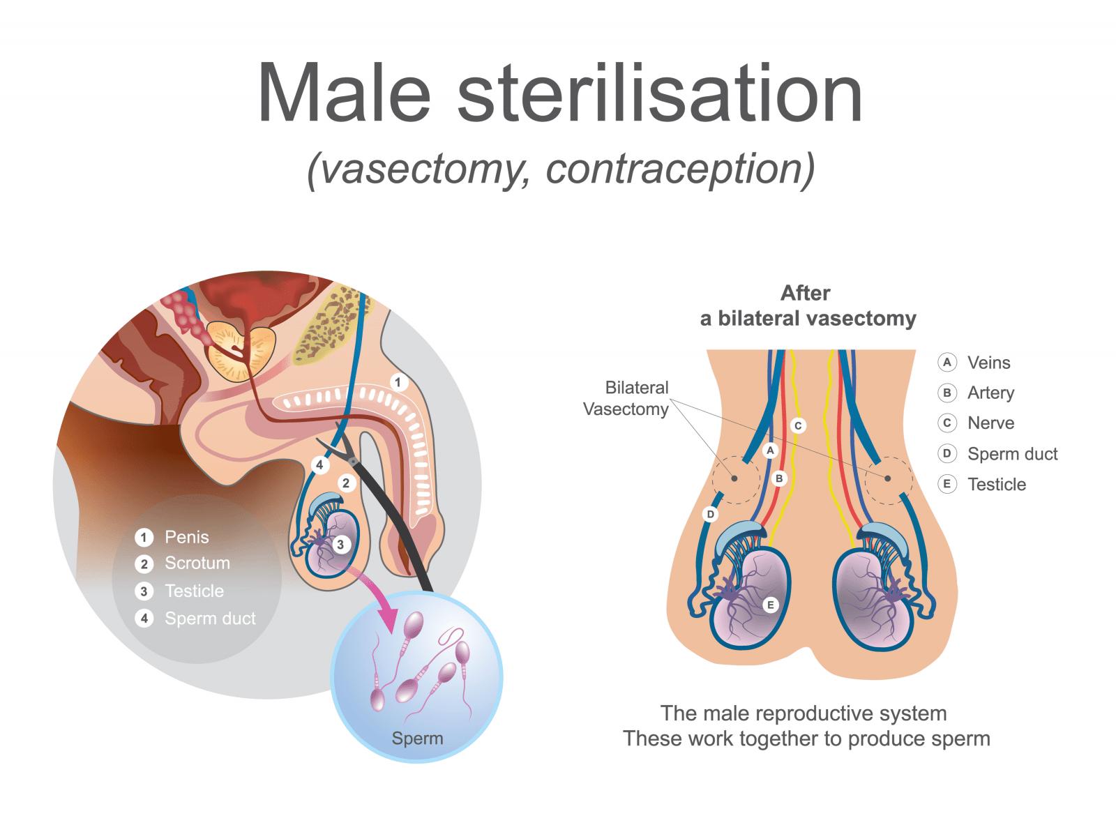Benefit of Vasectomy 1